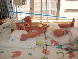 Premature Baby Born at 34th Week of Pregnancy - New Kids Center